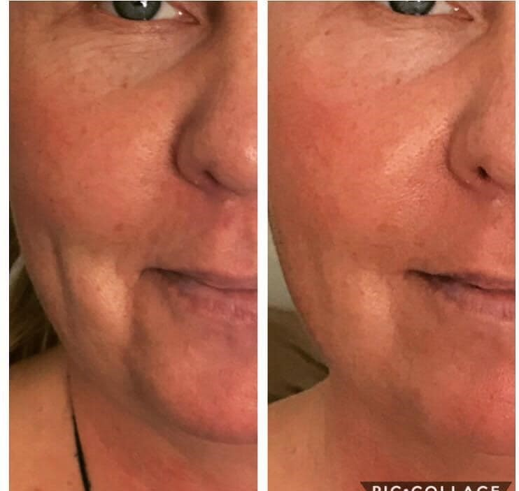 2nd Session of the Natural Facelift!