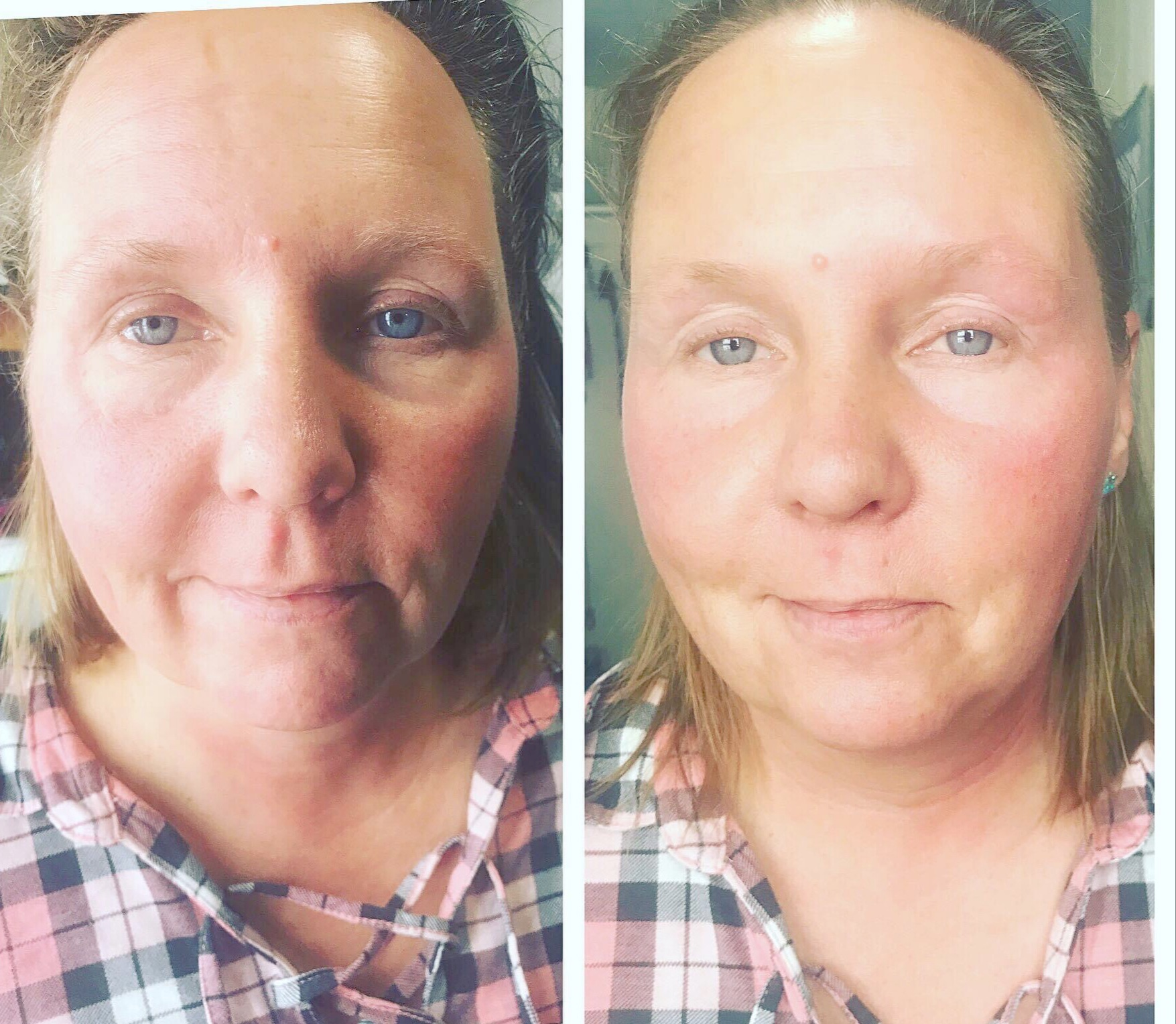 1st Session of the Natural Facelift!